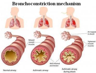 Mechanism of Bronchoconstriction