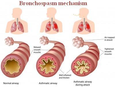 Bronchospasm: Definition, Symptoms, Causes, and Treatment