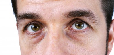 Man with bags under eyes and dark circles under eyes