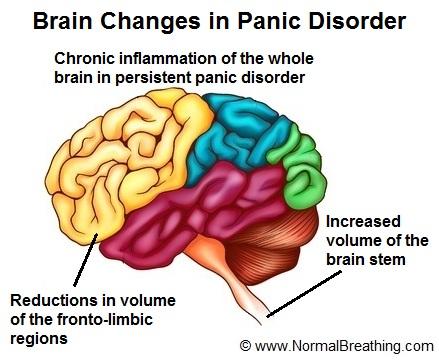 brain changes in panic disorder