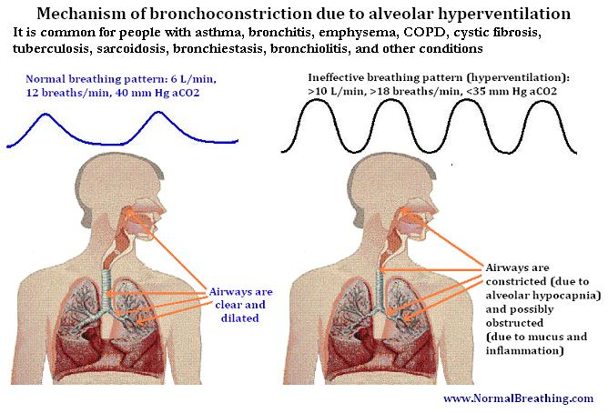 Bronchoconstriction mechanism
