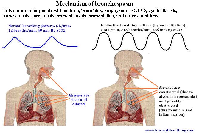Bronchospasm mechanism