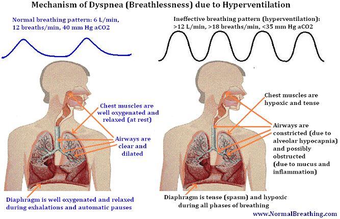 breathlessness mechanism and weak respiratory muscle causes