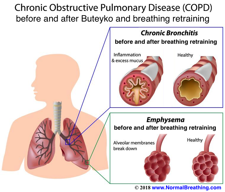 untreated emphysema vs effects of natural treatment with Buteyko breathing retraining: before and after