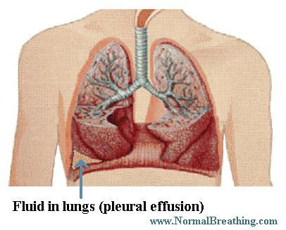 fluid on and in lungs