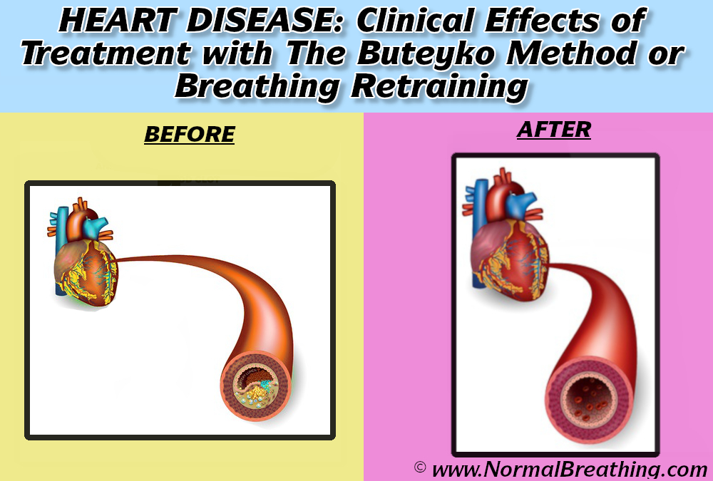 Ischemic heart disease before and after treatment with the Buteyko method or breathing retraining