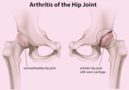 Chronis arthirtis of hip joints of legs