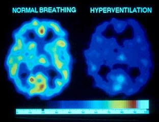 Hyperventilation causes low body O2 and chronic fatigue with low energy