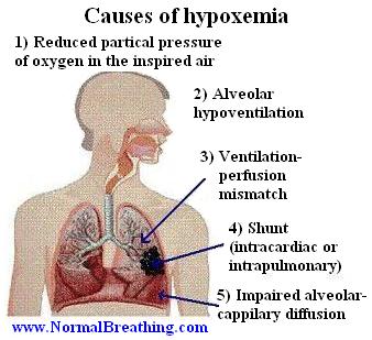 Hypoxemia