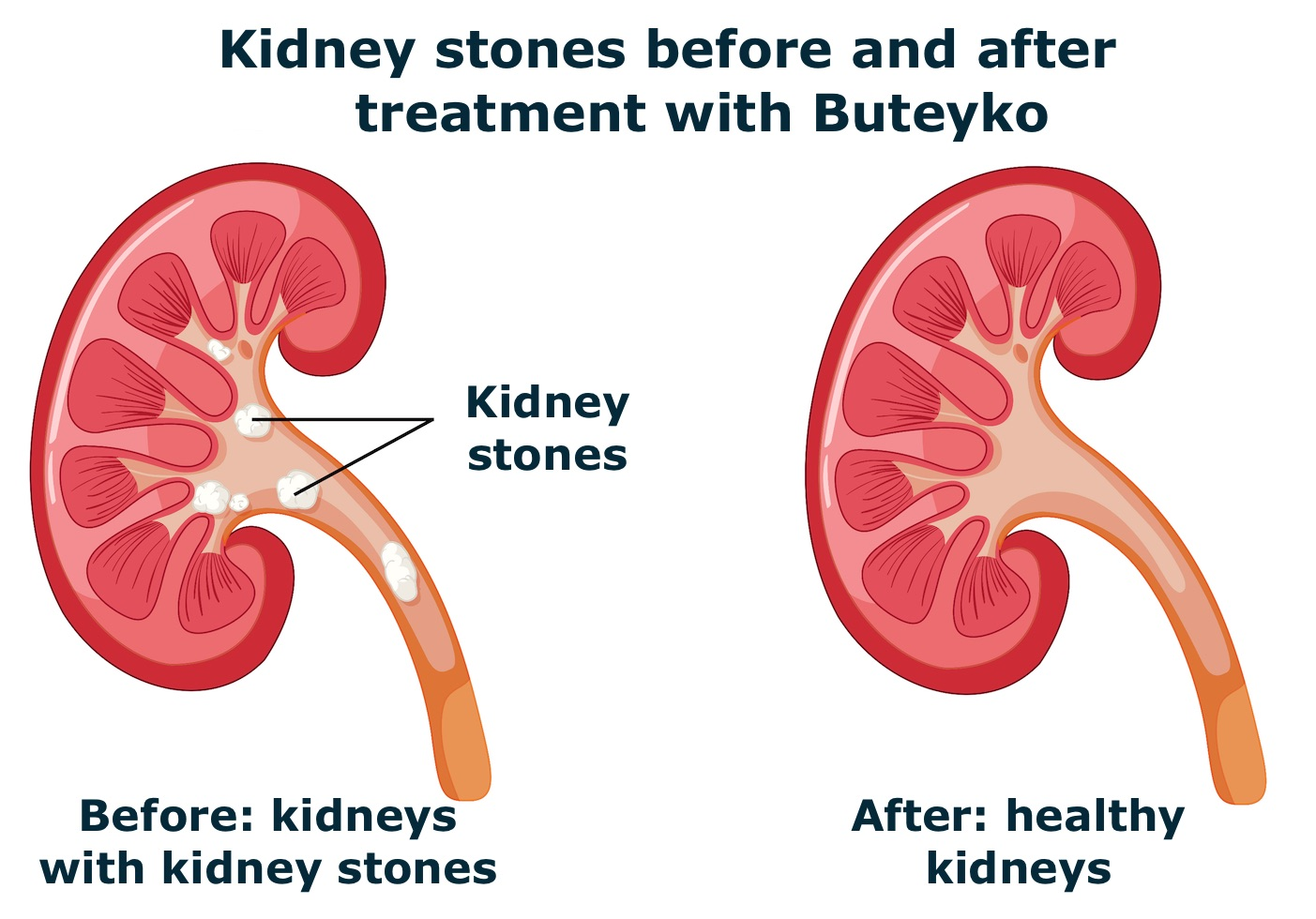 Kidney Stone before and after treatment with the Buteyko method or breathing retraining