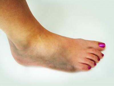 Swelling of the feet