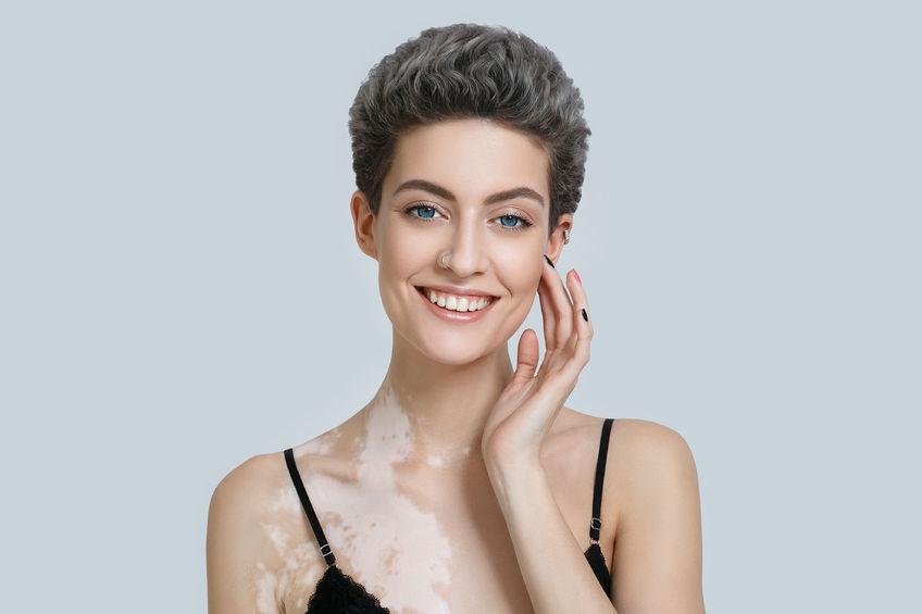 woman with vitiligo untreated naturally