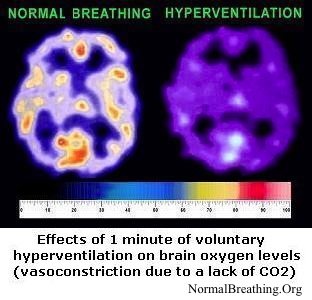 Brain oxygen levels for normal breathing and when short in breath